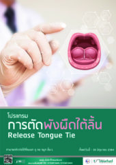 release-tongue-tie-cover