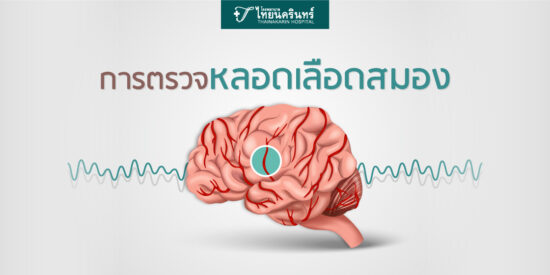 ภาพปกการตรวจหลอดเลือดในสมอง