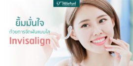 ยิ้มมั่นใจด้วยการจัดฟันแบบ-invisalign