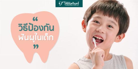 4วิธีป้องกัยฟันผุในเด็ก